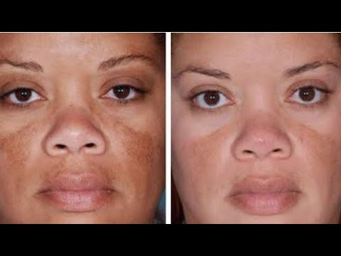 KYBELLA Treatment - Post-care Instructions from YouTube · Duration:  1 minutes 20 seconds