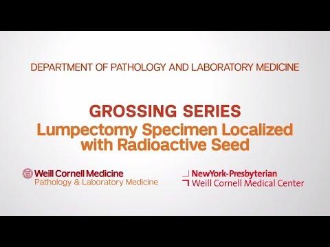 Grossing Breast Pathology Specimens | Department of Pathology and Laboratory Medicine