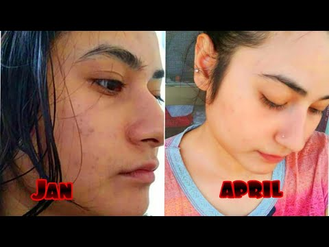 😍How I Got Rid Off Eczema, Acne And Dark Spots | Finally A Holy Grail Routine |JAN 2020 TO APR 2020|