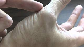 Recognizing Thumb Muscle Atrophy - Carpal Tunnel Syndrome