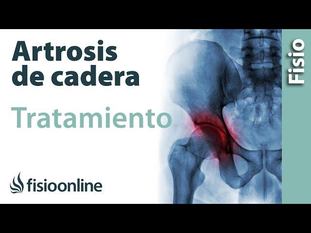 Artrosis de cadera ¿Cómo prevenirla? | Fisioterapia Online