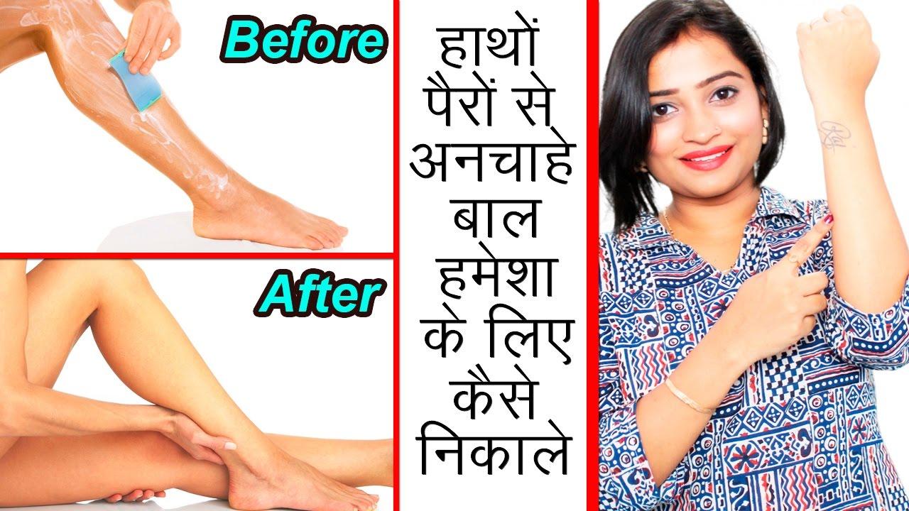 हाथों पैरों से अनचाहे बाल हमेशा के लिए कैसे निकाले | How to Remove Unwanted  Hair from Legs & Hands