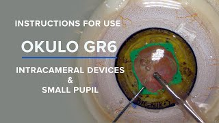 BIONIKO - OKULO GR6 for Advanced Intracameral Devices