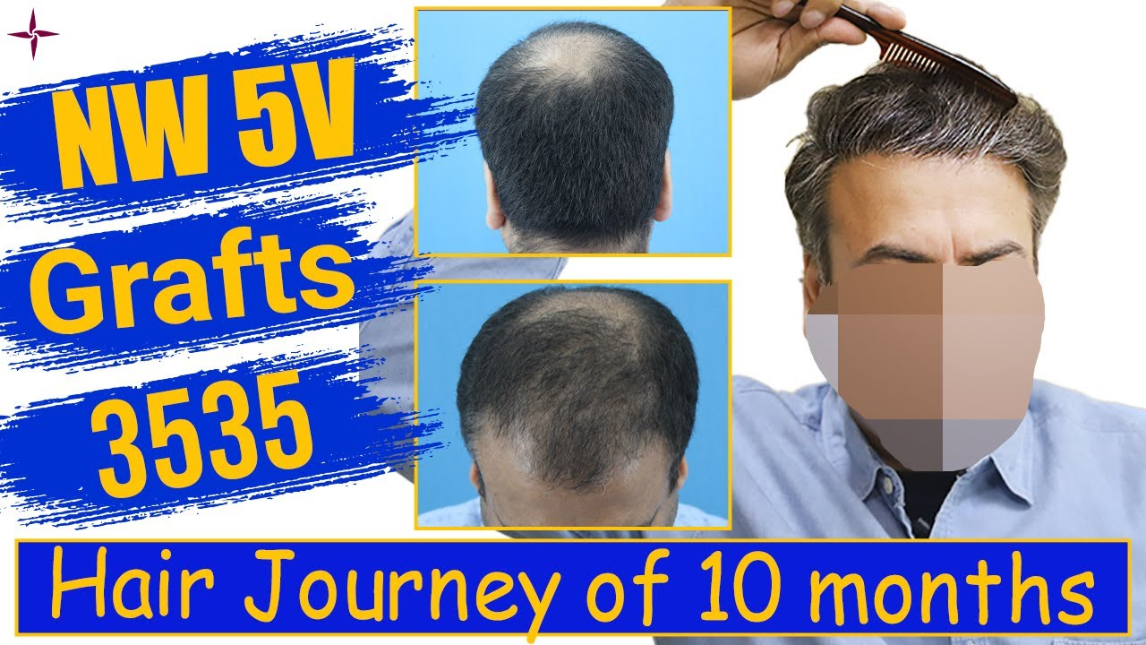Hair Transplantation: 3535 grafts, Grade 5V @Eugenix Hair Sciences by Drs Sethi & Bansal
