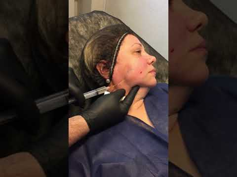 INTRALIPOTHERAPY FOR FACE AND NECK