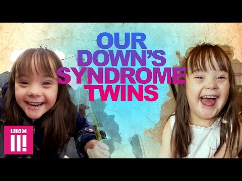 Our Down's Syndrome Twins | Living Differently