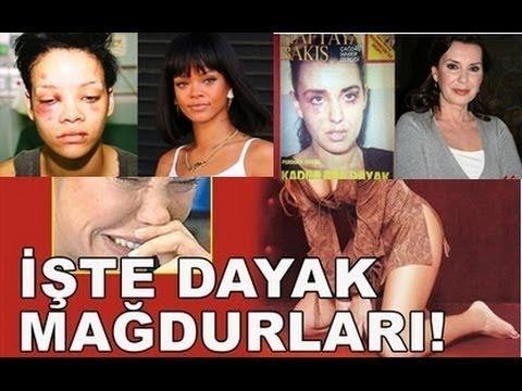 ŞİDDET GÖREN ÜNLÜLER !!!