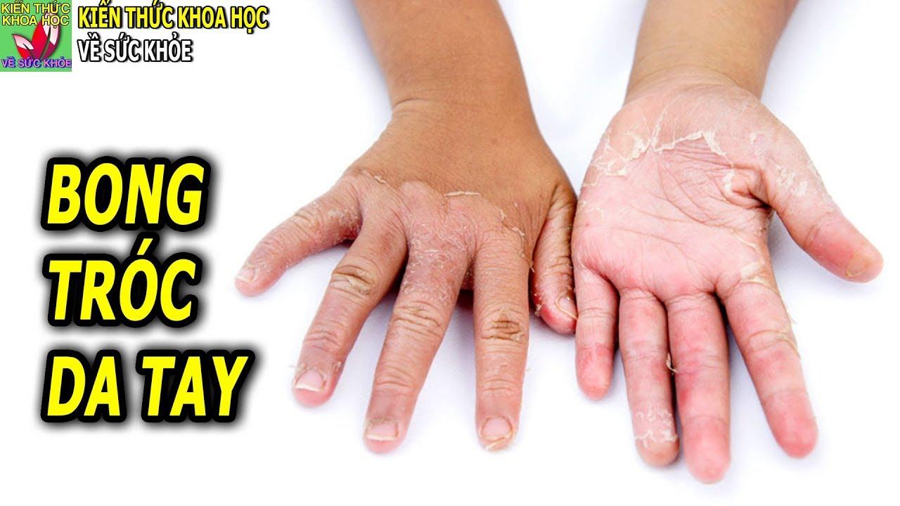 Bong tróc da tay là bệnh gì tại sao da tay bị khô và bong tróc