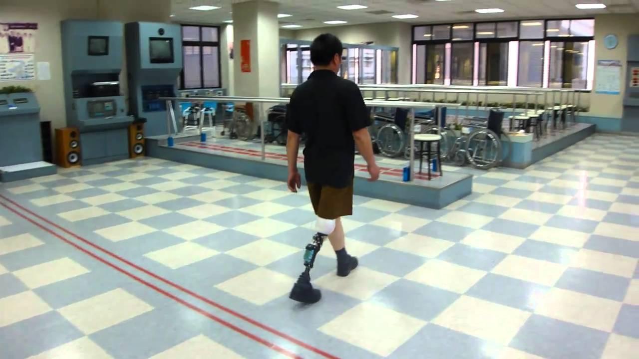 德林義肢_林大哥穿戴電子膝關節.MP4 - YouTube