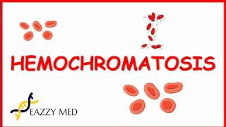 Hemochromatosis is the abnormal accumulation of iron in parenchymal organs, leading to organ toxicity. it most common autosomal recessive genetic diso...