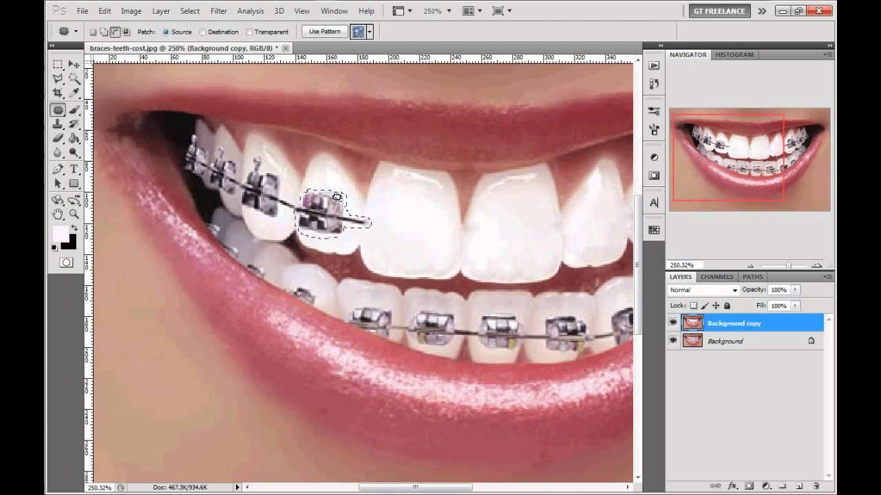 Photoshop Tutorial Remove Braces Whiten Teeth Youtube