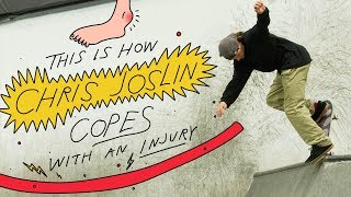 This Is How Chris Joslin Copes With An Injury