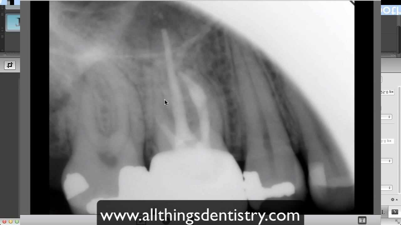 Endodontic Perforation - Hints to help you when it happens to you