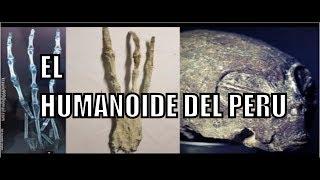 ¡¡ULTIMA HORA!! SOBRE MOMIA DE NAZCA , EL HUMANOIDE DEL PERU