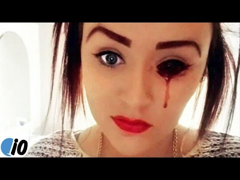 Meet The Girl Who Bleeds From Her Eyes