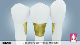 Dental animation: Biofilm removal in periodontal pockets (EMS MEDICAL) - 3D Animation Medizin