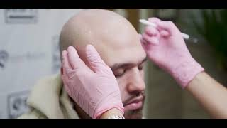 Starting A New Journey With Scalp Micropigmentation (Mike Roach Documentary)
