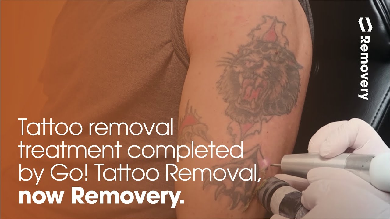 Laser Tattoo Removal Of A Lion Half Sleeve - YouTube