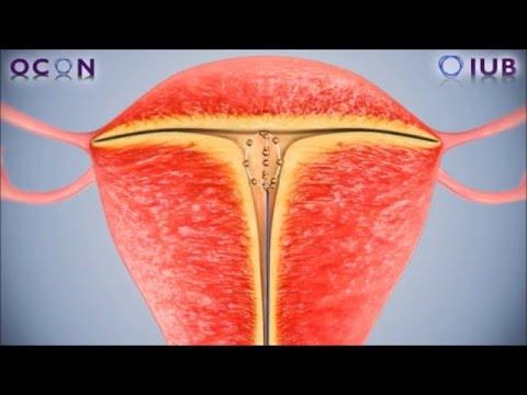 The IUB SCu300 - a new spherical intrauterine device