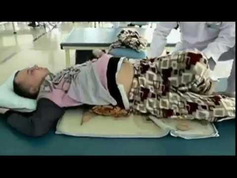 Перелом шеи: лечение, диагностика, реабилитация