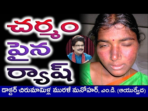 SKIN RASH Causes & Ayurvedic Treatment in Telugu by Dr. Murali Manohar Chirumamilla, M.D.