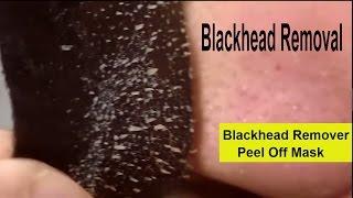 Blackhead Removal On Nose Strips | Blackhead Remover Peel Off Mask 2017