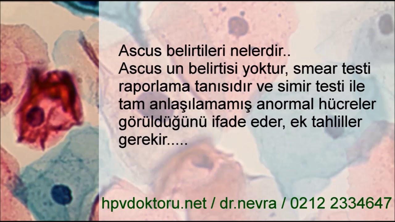 hpv ascus nedir)