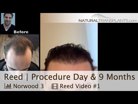 Famous Cardiac Surgeon's Stories of Near Death Experiences in SurgeryKaynak: YouTube · Süre: 12 dakika28 saniye