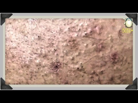 Blackheads, Whiteheads And Cystic Acne Removal On Face With Relaxing Music 30220!