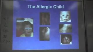 徐安琳医师 (Dr. Anlin Xu, MD) - 中医大学讲座, 过敏及免疫系统