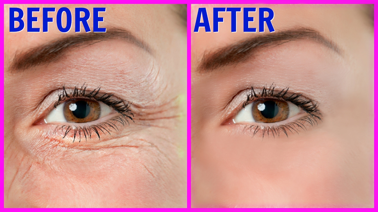 How to remove wrinkles 75