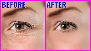 Facial line removal Arizona