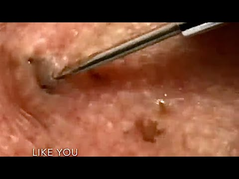 Flip It And Reverse It Dilated Pore of Winer, Revisited!