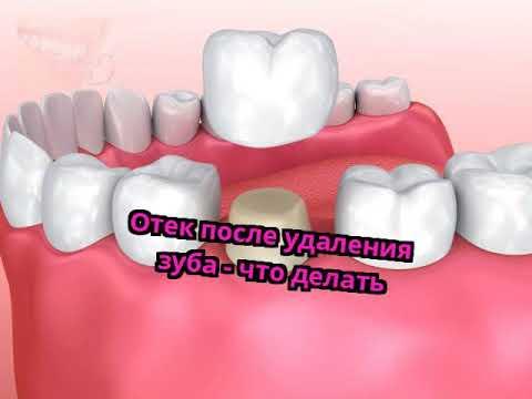 Отек после удаления зуба - что делать