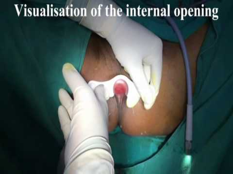 VAAFT - Video Assisted Anal Fistula Treatment by Prof . Gyan Saurabh , LHMC , New Delhi , India