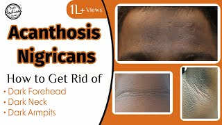 The Doctors field a viewer question about how to address Acanthosis nigricans, which is often associ.
