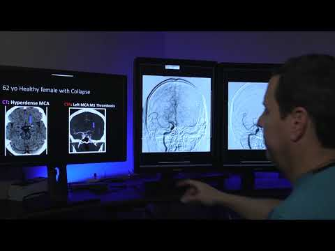 HealthBreak | Clot Retrieval for Stroke