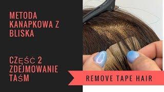 Metoda kanapowa TAPE ON zdejmowanie taśm z użyciem removera