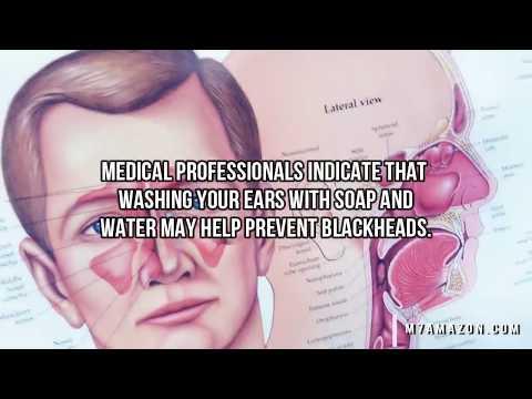 Ear Blackheads, Ear Blackhead, Ear Dilated Pore of Winer