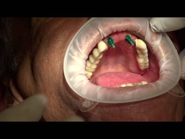 Identium implantaat afdruk door Mark van den Goorbergh