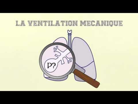 apr�s tube respiratoire pour ventilateur est retir� larynx voix enrouement