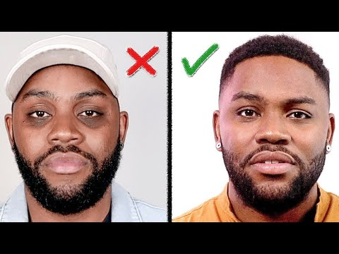 Remove DARK CIRCLES Under Your Eyes (How I Did It) Men's Skin Care