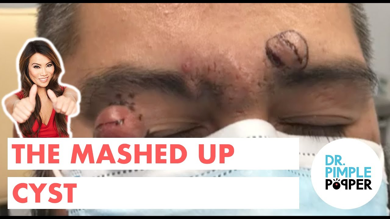 The Mashed Up Cyst