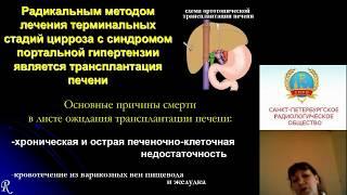 Кудрявцева А.В. Многофазная КТ цирроза печени при портальной гипертензии