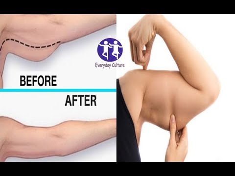 HOW TO TIGHTEN AND TONE SAGGING ARMS | THIS WILL GET RID OF SAGGING ARM FASTER,Effective secret rec