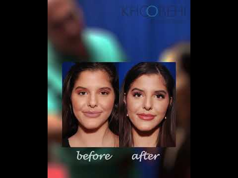 3 Months Postop Non-surgical Nose Job | Khoobehi & Associates