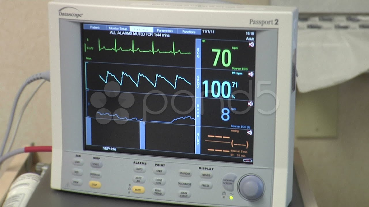 Medical Ekg Heart Rate Monitor At Hospital. Stock Footage ...