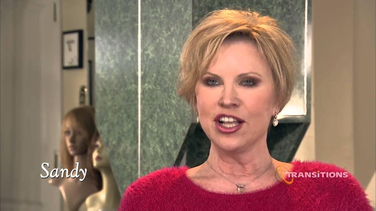 Sandy Female Pattern Hair Loss Reallusions Hair