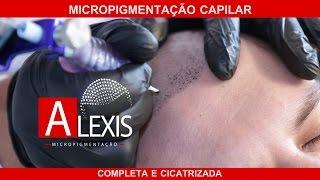 MICROPIGMENTAÇÃO CAPILAR COMPLETA E CICATRIZADA EM CURITIBA.