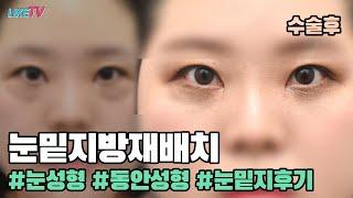 [라이크TV] 눈밑지방재배치 (다크써클)  후 영상공개…